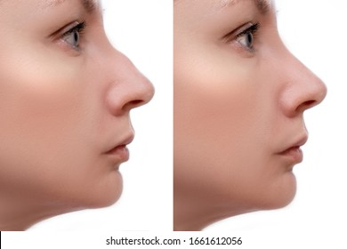 Young woman before and after rhinoplasty and nose hump, shape correction on white background, cosmetology and aesthetic surgery concept.