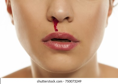 a young woman with a bloody nose
