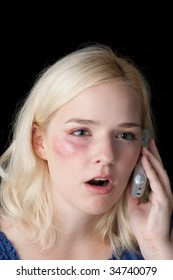 Young woman with bruised eye making a distress call