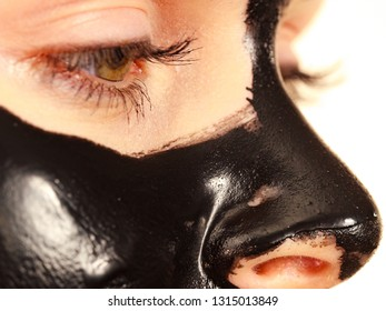Young woman with carbo detox black peel-off mask on her face, detail view. Teen girl taking care of oily skin, cleaning the pores. Beauty treatment. Skincare.