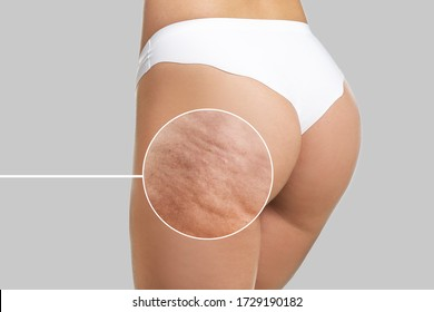 Young woman with cellulite problem on light background