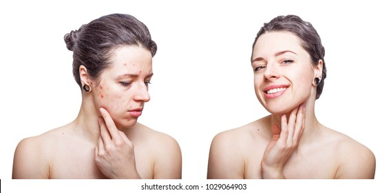 Young woman with cool  dark grey hair looking upset about face skin problems and joyful after treatment. Before and after comparison. Isolated on white background.