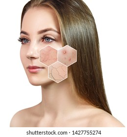 Young woman with couperose and acne on face skin. Zoom hexagon shows skin problems. Isolated on white.
