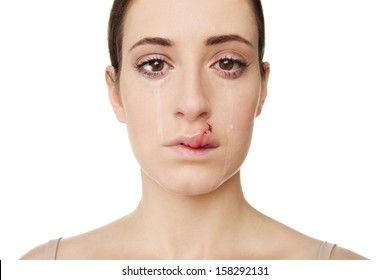 Young Woman Crying with a Swollen Lip, Lip features real stitches and swelling