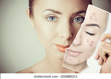 young woman face portrait with photo of her old skin