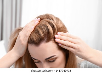 Young woman with hair loss problem on blurred background, closeup