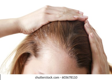 Young woman with hair loss problem on white background, closeup