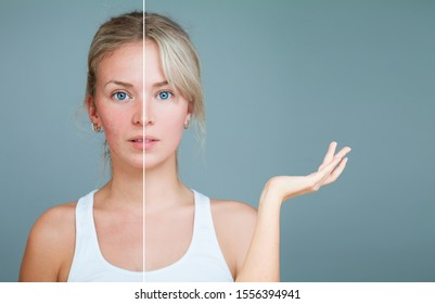 Young Woman with hand raised. Unhealthy and Healthy Skin After Treatment. Facial Treatment, Medicine and Cosmetology Concept. Perfect Skin and Skin Problem.