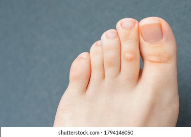 A young woman has hard corns and calluses on her toes from wearing shoes that uncomfortable and don't fit properly. Female foot. Close up view.