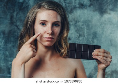 Young woman have allergy on chocolate. Her face have a lot of acne and she is unhappy.
