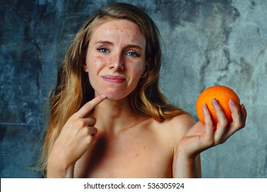 Young woman have allergy on orange. Face have a lot of acne and she is very unhappy.