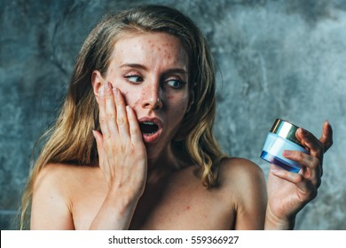Young woman have allergy on body cream. Her face have a lot of acne and she is very unhappy.