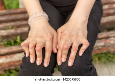 Young woman having rheumatoid arthritis takes a rest sitting on a bench at a yard of a hospital. Hands and legs are deformed. She feels pain. Selected focus.