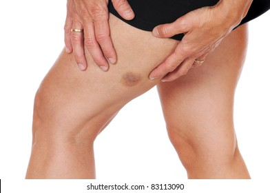 Young woman with a hematoma at her upper thighs