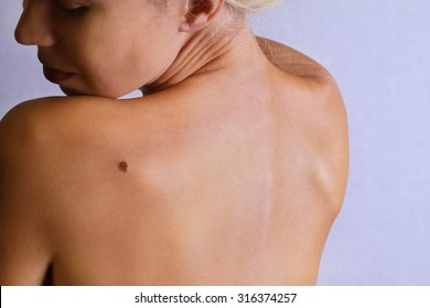 Young woman looking at birthmark on her back, skin. Checking benign moles. Skin tags removal