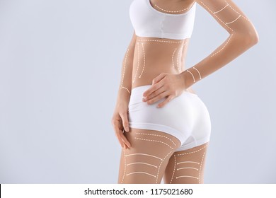 Young woman with marks for liposuction operation and space for text on light background. Cosmetic surgery