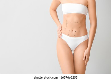 Young woman with marks on her belly against light background. Concept of plastic surgery