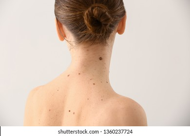 Young woman with moles on light background