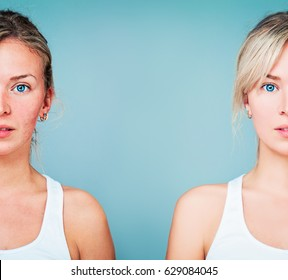 Young Woman with Perfect Skin and Skin Problem. Unhealthy and Healthy Skin After Treatment. Facial Treatment, Medicine and Cosmetology Concept