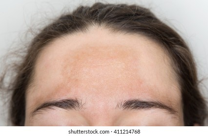 Young woman with pigmented spots on her forehead