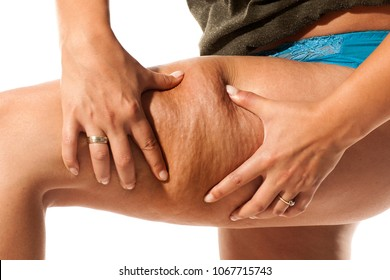 young woman pinching cellulite on her leg on a white background