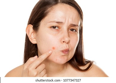 Young woman pointing on a pimple on her cheek on white background