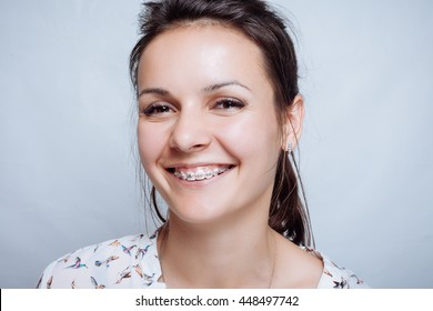 Young woman portrait with dental braces natural. Girl smiling cheerfully. concept of medicine and dentistry. beautiful white teeth