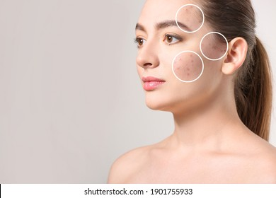 Young woman with problem skin on grey background