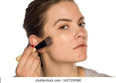 Young woman with problematic skin applying liquid foundation on white background