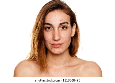 young woman with problematic skin and without makeup poses on a white background