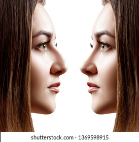 Young woman in profile before and after rhinoplasty. Over white background.