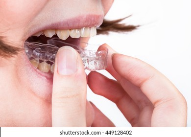 young woman puts clear aligner for orthodontic correction of bite