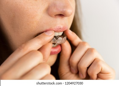 young woman puts transparent aligner for dental treatment