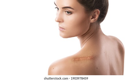 Young woman with a scar on her shoulder over white background
