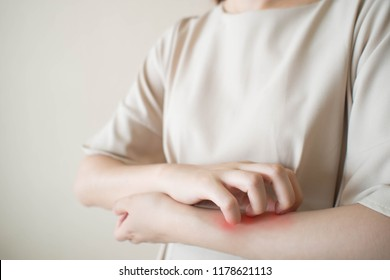 Young woman scratching arm from having itching. Cause of itchy skin include insect bites, eczema, dermatitis, food/drugs allergies or dry skin. Health care concept. Close up.
