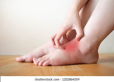 Young woman scratching the itch on her feet w/ redness rash. Cause of itchy skin include athlete's foot (fungal infection), dermatitis (eczema), psoriasis, or bug bites. Health care concept. Close up.