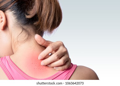 young woman scratching upper back or neck rash on white background