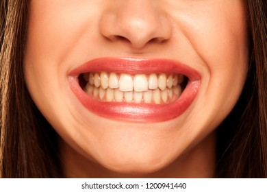 young woman showing her natural and healthy teeth