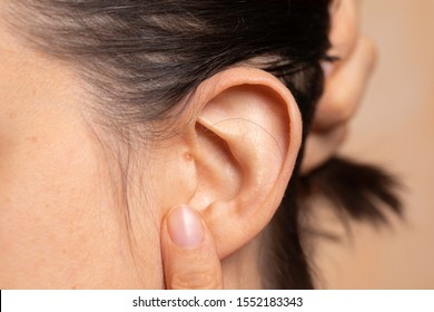Young woman showing mole on ear close up view