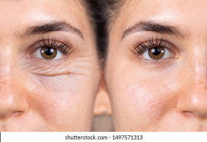A young woman shows the before and after results of successful blepharoplasty surgery, corrective procedure to remove puffy and swollen bags beneath the eye.