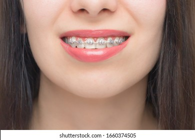 Young woman smile with dental braces. Brackets on the teeth after whitening. Self-ligating brackets with metal ties and gray elastics or rubber bands. Orthodontic teeth treatment