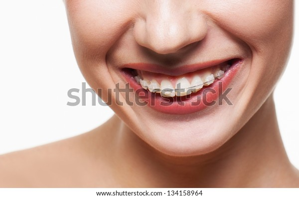 Young woman smile with dental braces