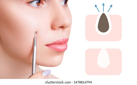 Young woman squeeze the acne with acne spoon near infographic with blackhead cleansing. Pore cleansing concept.