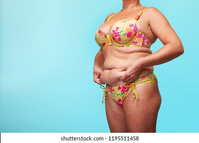 Young woman suffering from cellulite and obesity. girl demonstrates obese body and fat on the abdomen and waist