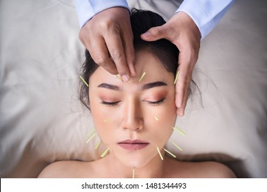 young woman undergoing acupuncture treatment on face