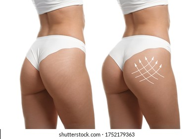 Young woman in underwear before and after plastic surgery on white background