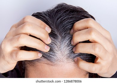 Young woman with white hair problem