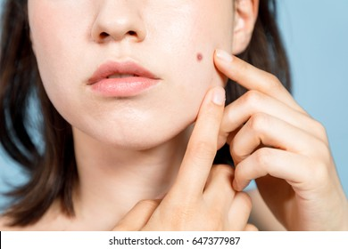 young woman who checks her skin. acne treatment.