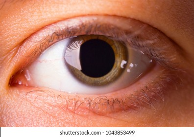 A young woman's eye with dilated pupil - close up
