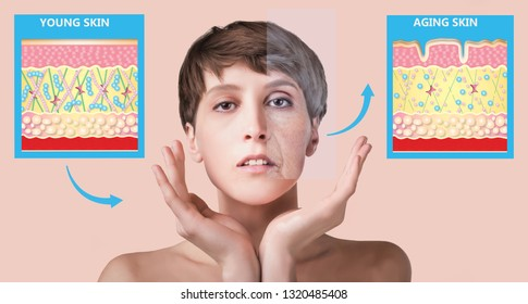 The younger skin and aging skin. elastin and collagen. A diagram of young and old face showing the decrease in collagen and broken elastin.